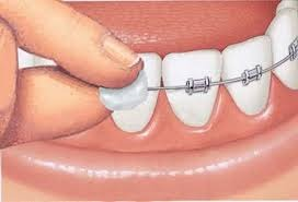 higiene dental con brackets